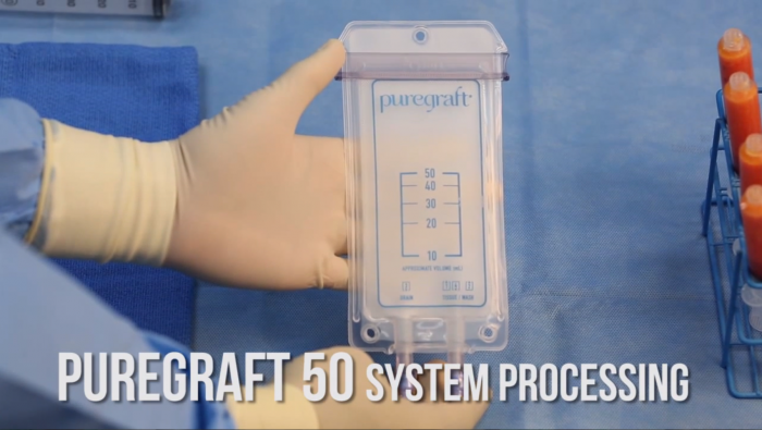 Puregraft_50_systemprocessing